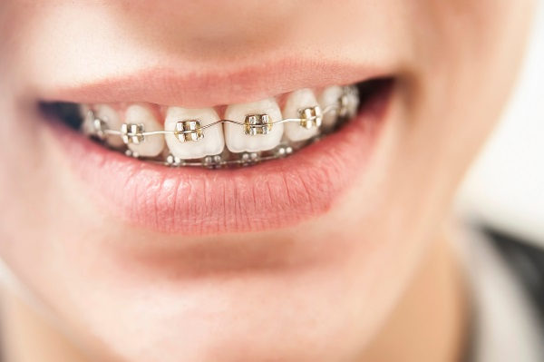 A Step By Step Process Of How Braces Work